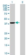 Western blot - GFOD1 antibody (ab69302)