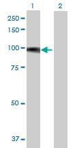 Western blot - FBXO42 antibody (ab69303)