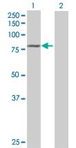 Western blot - ASNSD1 antibody (ab69305)