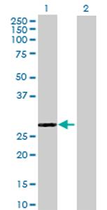 Western blot - EPDR1 antibody (ab69306)