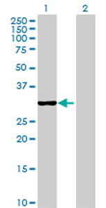 Western blot - QPCTL antibody (ab69308)