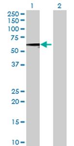 Western blot - SARS2 antibody (ab69316)