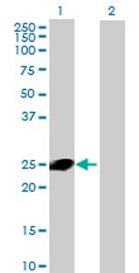 Western blot - CXorf48 antibody (ab69317)