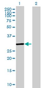 Western blot - THG1L antibody (ab69318)