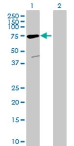 Western blot - ACSM5 antibody (ab69319)