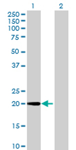 Western blot - NUP62CL antibody (ab69320)