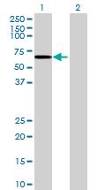 Western blot - GDPD2 antibody (ab69321)