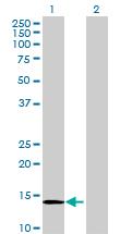 Western blot - Mago nashi homolog 2 antibody (ab69324)