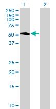 Western blot - LAX1 antibody (ab69327)