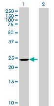 Western blot - CHCHD3 antibody (ab69328)