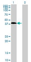Western blot - MAGEB18 antibody (ab69329)