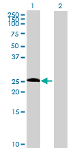 Western blot - CEP27 antibody (ab69330)