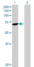 Western blot - DARS2 antibody (ab69336)