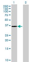 Western blot - RWDD1 antibody (ab69339)