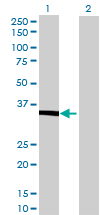Western blot - LCMT1 antibody (ab69340)