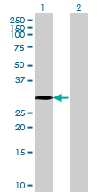 Western blot - HSD17B7 antibody (ab69341)