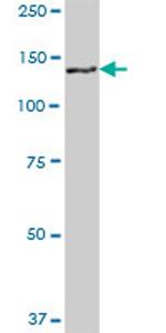 Western blot - GTSE1 antibody (ab69342)