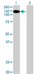 Western blot - VPS54 antibody (ab69344)