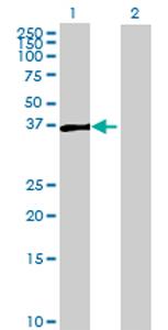 Western blot - ARMCX3 antibody (ab69345)
