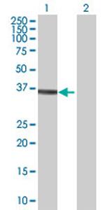 Western blot - DPH5 antibody (ab69347)