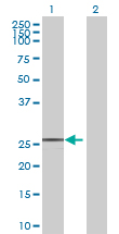 Western blot - FKBP7 antibody (ab69350)
