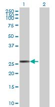 Western blot - CYB5R2  antibody (ab69351)