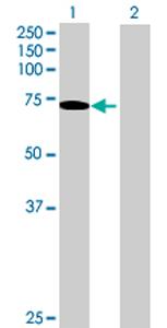 Western blot - SHC3 antibody (ab69355)