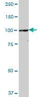 Western blot - CPSF2 antibody (ab69356)