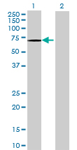 Western blot - OGFOD1 antibody (ab69359)