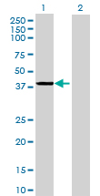 Western blot - PCBP3 antibody (ab69360)