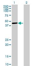 Western blot - PCMTD2 antibody (ab69361)
