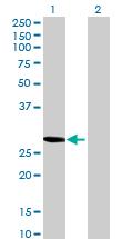 Western blot - RASSF3 antibody (ab69362)