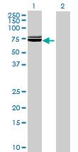 Western blot - SLC39A5 antibody (ab69363)