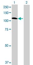 Western blot - GBA2 antibody (ab69366)
