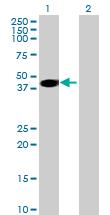 Western blot - PPIL6 antibody (ab69370)