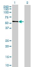 Western blot - HEXDC antibody (ab69371)