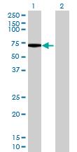 Western blot - TTLL6 antibody (ab69372)