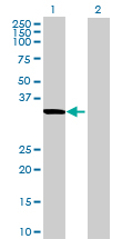 Western blot - RPUSD3 antibody (ab69391)