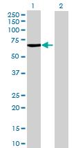 Western blot - CYP4V2 antibody (ab69392)