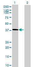 Western blot - MGC34713 antibody (ab69393)