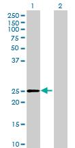 Western blot - DHRS4L2 antibody (ab69394)