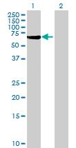 Western blot - PPM1J antibody (ab69395)