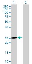 Western blot - FLJ40504 antibody (ab69399)