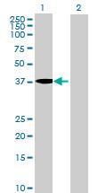 Western blot - MGC33407 antibody (ab69401)