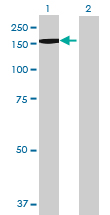Western blot - BRPF3 antibody (ab69410)