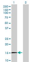 Western blot - IL1F8 antibody (ab69411)