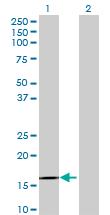 Western blot - IL1F6 antibody (ab69414)