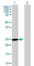 Western blot - ITGB1BP3  antibody (ab69417)
