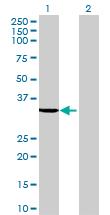 Western blot - SULT1B1 antibody (ab69418)