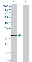 Western blot - RND1 antibody (ab69419)